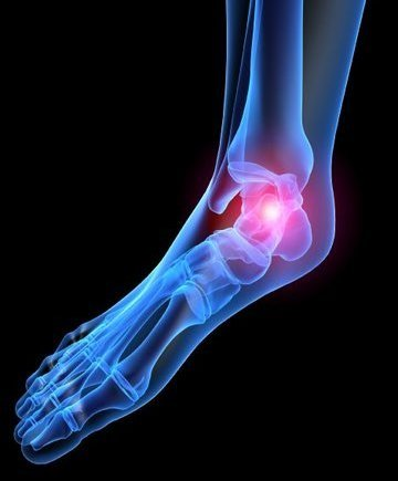 Mechanicsburg Podiatrist | Mechanicsburg Heel Pain/Fasciitis | PA | Cumberland Valley Foot And Ankle Specialists PC |