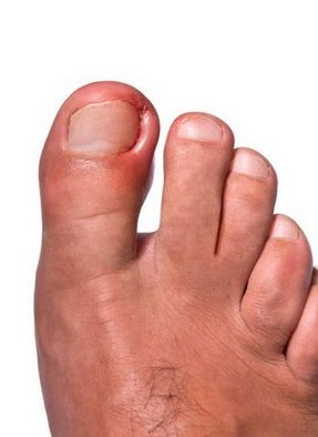 Mechanicsburg Podiatrist | Mechanicsburg Ingrown Toenails | PA | Cumberland Valley Foot And Ankle Specialists PC |